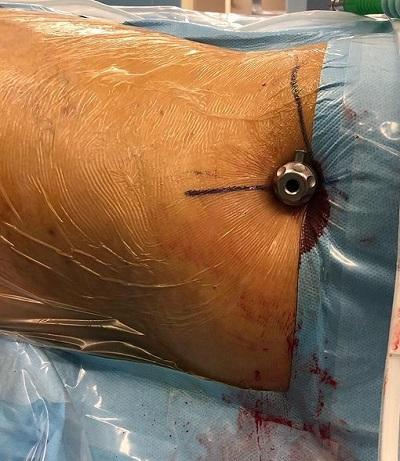 آندوسکوپی دیسک کمر و جراحی بسته کمر توسط دکتر بصام پور